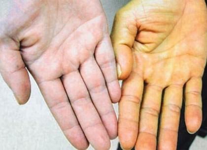 У школьников Боровой болезнь грязных рук – гепатит